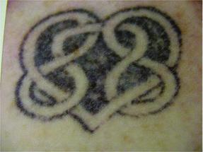 tattooheart-clarity