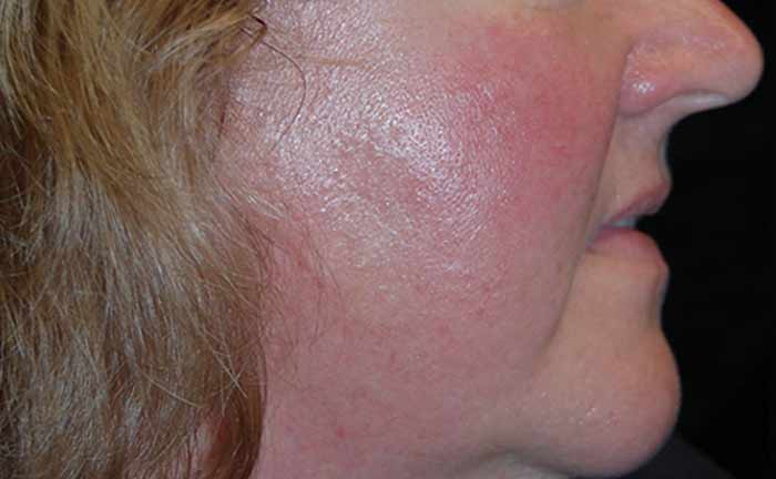 xeo-rosacea-lasergenesis-Rick-Green-MD-P1-before[1]