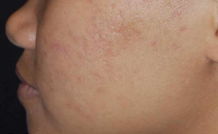 xeo-skin-resurfacing-acne-scars-lasergenesis-Tahl-Humes-MD-P1-after5Txs[1]