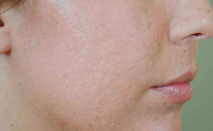 xeo-skin-resurfacing-scar-reduction-Samantha-Pierog-MD-P1-after1Tx[1]