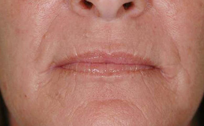 xeo-wrinkles-pearfractional-John-DeSpain-MD-P1-after1tx[1]