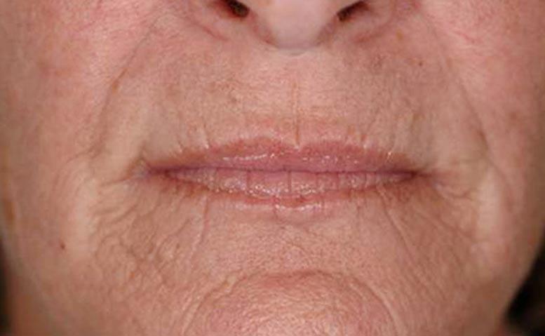 xeo-wrinkles-pearfractional-John-DeSpain-MD-P1-before[1]