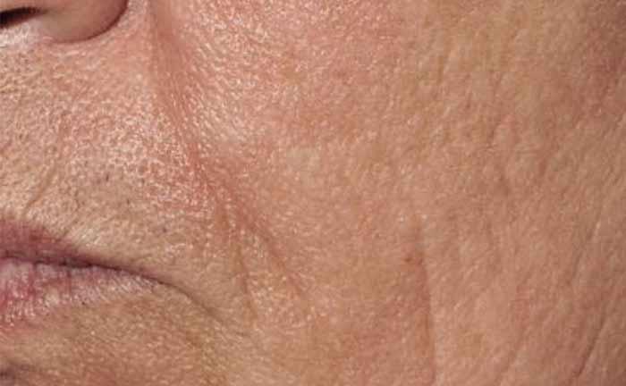 xeo-wrinkles-pearlfractional-Barry-DiBernardo-MD-P1-after1Tx_0[1]