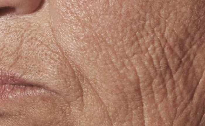 xeo-wrinkles-pearlfractional-Barry-DiBernardo-MD-P1-before_0[1]